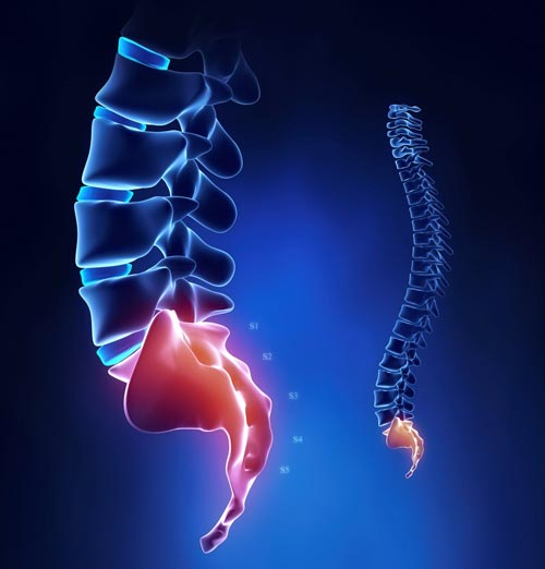 Image result for درمان درد دنبالچه